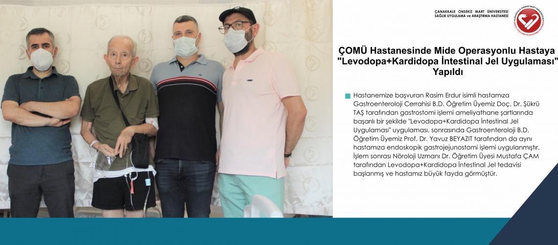 """ÇOMÜ Hastanesinde Mide Operasyonlu Hastaya  """"Levodopa+Kardidopa İntestinal Jel Uygulaması"""" Yapıldı"""