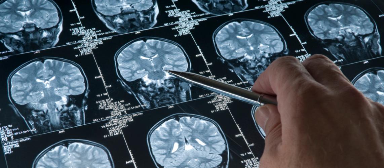 MS (Multiple Skleroz) Hastalığı En Çok Gençleri Etkiliyor